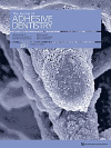 The International Journal of Oral and Maxillofacial Implants