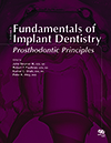 Fundamentals of Implant Dentistry, Volume 1: Prosthodontic Principles