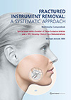 Fractured Instrument Removal: A Systematic Approach