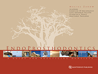 EndoProsthodontics: A Guide for Practicing Dentists