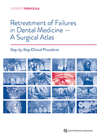 Retreatment of Failures in Dental Medicine � A Surgical Atlas: Step-by-Step Clinical Procedures
