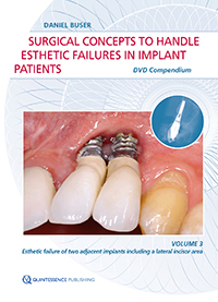 Decision Making for Retreatment of Failures in Dental Medicine (DVD-ROM) <br>